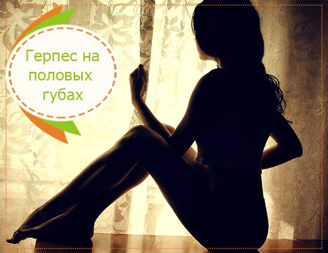герпес на половых губах лечение